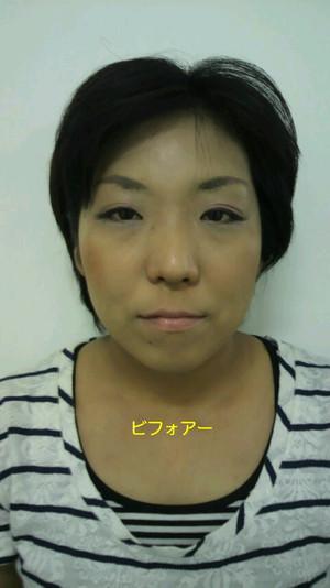 小顔調整&整膚美顔マッサージコース(施術前)