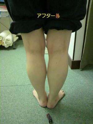 O脚・側彎・猫背矯正コース(施術後)