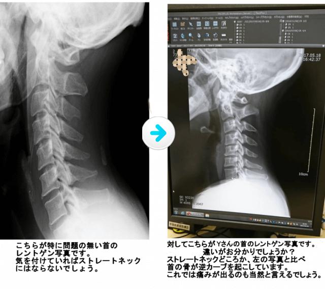 医師も驚く酷さのストレートネックのレントゲン写真。
