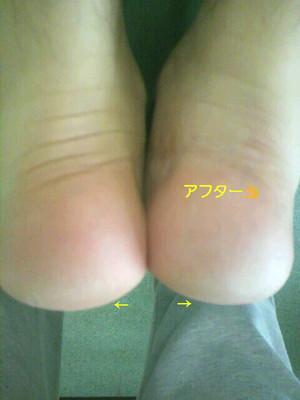膝の高さが違う男性(施術後)