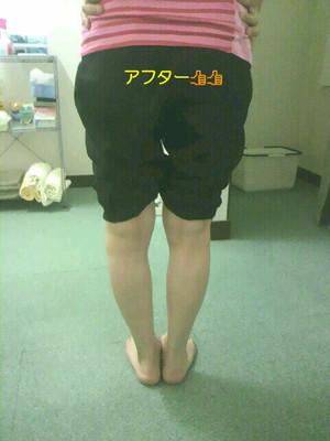 変形性膝関節症(施術後)
